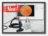 Vision Omega - Цифровая видеоофтальмоскопия