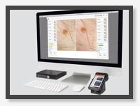Программное обеспечение для дерматоскопии Vision Derma