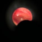 Диагностический отоскоп BETA 100 - яркое ксенон-галогеновое освещение